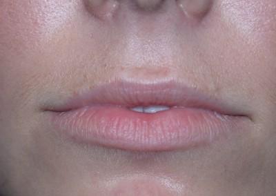LipsBefore