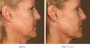 Ultherapy4