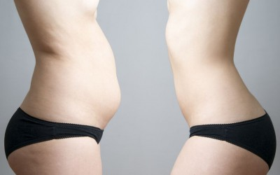 Liposuction and Body Contouring