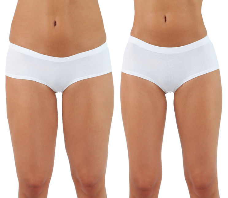 Tumescent liposuction is the safest form of liposuction