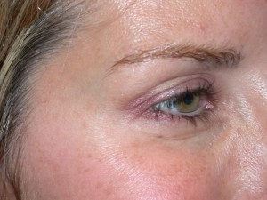 Can fillers be used to treat dark circles under the eyes