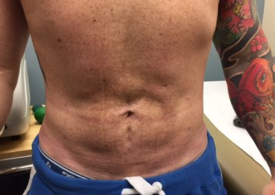 LIPO1AFTER
