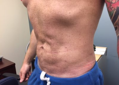 LIPO2AFTER