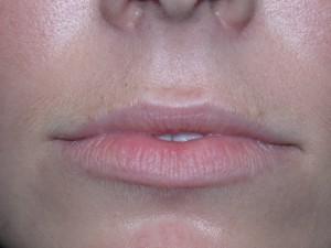 LipsBefore1