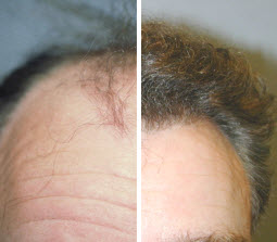 Our hair restoration services are great