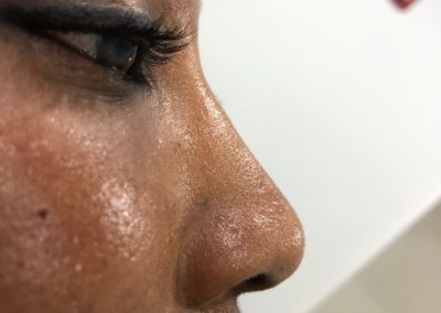 Liquid Nose Job After