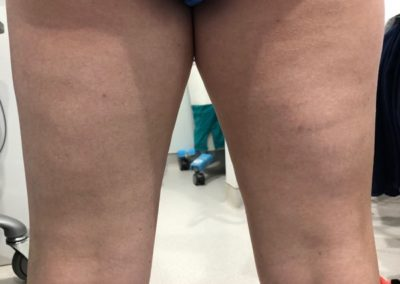 Lipo thighs before